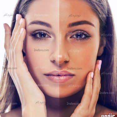 برطرف کردن برنزگی پوست