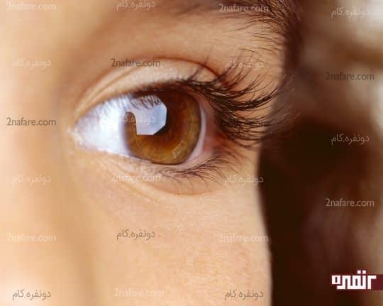 سلامت چشم را ارتقا می بخشد