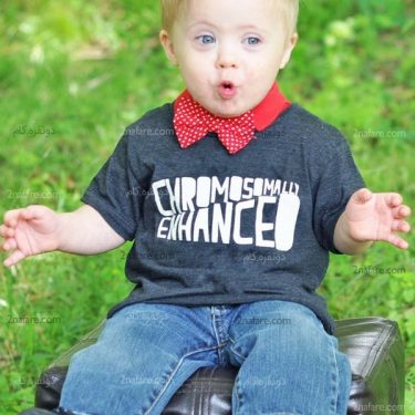 سندرم داون در نوزادان